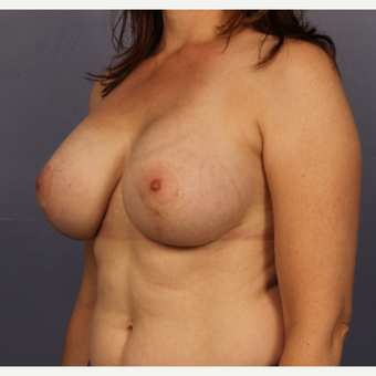 Breast Lift with gummy bear implants after 3645963