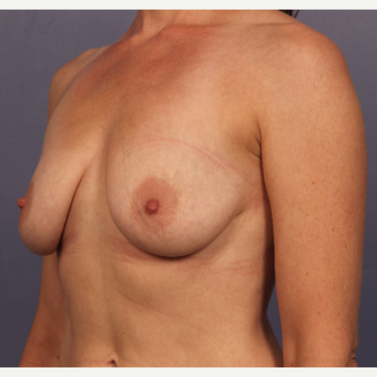 Breast Lift with gummy bear implants before 3645963