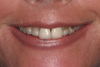 This 55 year old female had old metal based crowns on two front teeth.  before 1411195