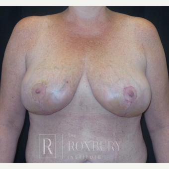 35-44 year old woman treated with Breast Lift after 3844293