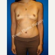 18-24 year old woman treated with Breast Implant Removal after 1588344