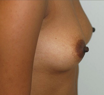 25-34 year old woman treated with Breast Augmentation before 3549764