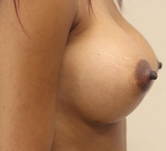 25-34 year old woman treated with Breast Augmentation after 3549764