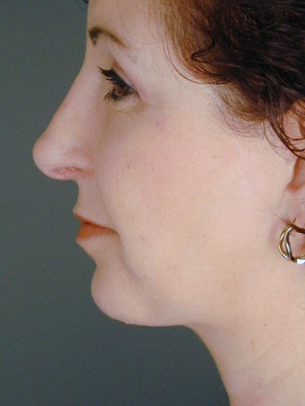 Female Chin Implant after 831889