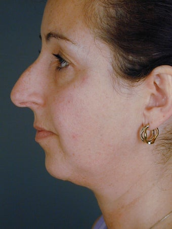 Female Chin Implant before 831889