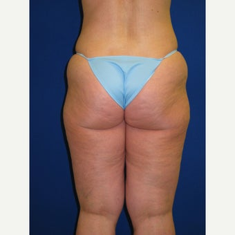 45-54 year old woman treated with Vaser Liposuction before 2087534