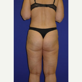 45-54 year old woman treated with Vaser Liposuction after 2087534