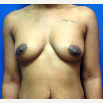 35-44 year old woman treated with Breast Augmentation before 3019502