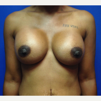 35-44 year old woman treated with Breast Augmentation after 3019502