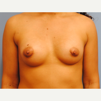 25-34 year old woman treated with Breast Implants after 3076396