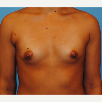 25-34 year old woman treated with Breast Implants before 3076396