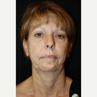 65-74 year old woman treated with Mini Face Lift before 2126747