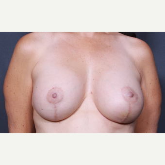 36 year old woman treated with Breast Lift with Implants after 3277893