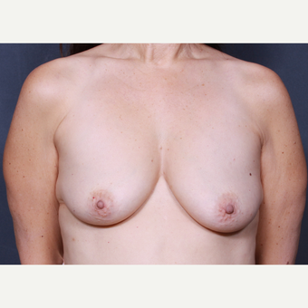 36 year old woman treated with Breast Lift with Implants before 3277893