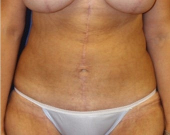 41 year old woman treated with a panniculectomy and breast augmentation with mastopexy after 3054037