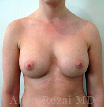 Bilateral Breast Augmentation - Pre- & 16 Months Post-op after 2255192