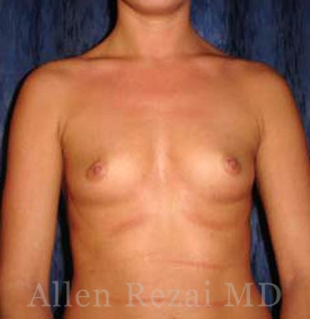 Bilateral Breast Augmentation - Pre- & 16 Months Post-op before 2255192