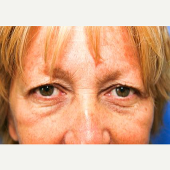 55-64 year old woman treated with Eyelid Surgery before 3093823