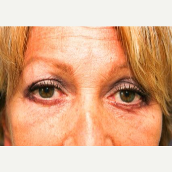 55-64 year old woman treated with Eyelid Surgery after 3093823
