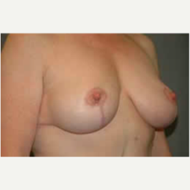 Breast Lift after 3058148