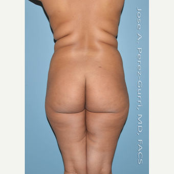 18-24 year old woman treated with Brazilian Butt Lift before 3045889