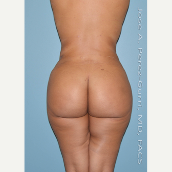 18-24 year old woman treated with Brazilian Butt Lift after 3045889