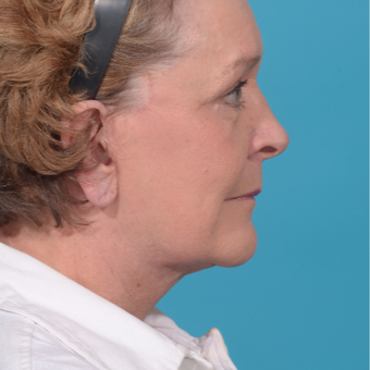 72 year old woman treated with Facelift/necklift, upper eyelid blepharoplasty after 3260376