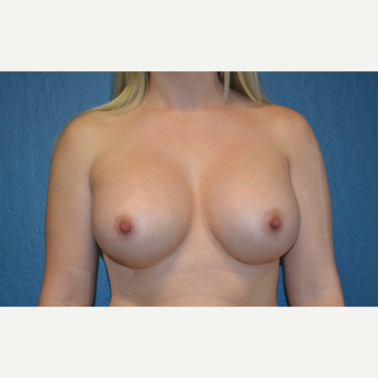 25-34 year old woman treated with Breast Augmentation after 3170174