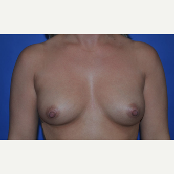 25-34 year old woman treated with Breast Augmentation before 3170174