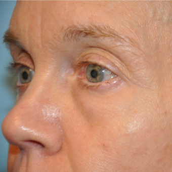 45-54 year old woman treated with Eye Bags Treatment before 3445772