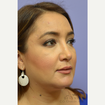 35-44 year old woman treated with Injectable Fillers after 3392052