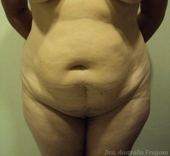 52 year old female treated for abdominoplasty before 967841
