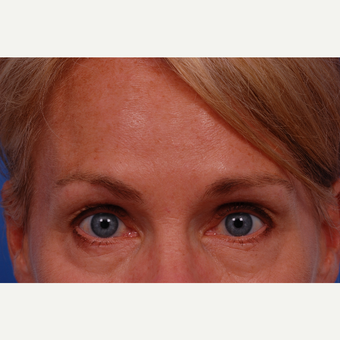 35-44 year old woman treated with Botox after 3168967