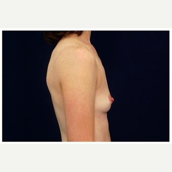 35-44 year old woman treated with Breast Augmentation before 3075765