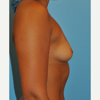 25 year old woman, 325 cc saline moderate profile plus filled to 350 cc- breast augmentation before 3584211