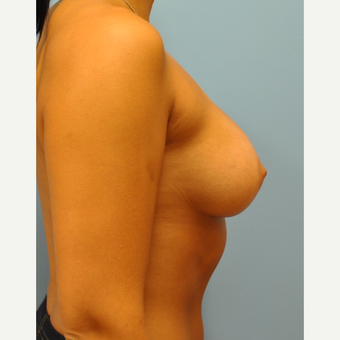 25 year old woman, 325 cc saline moderate profile plus filled to 350 cc- breast augmentation after 3584211