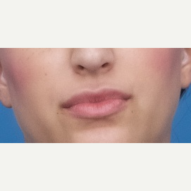 25-34 year old woman treated with Restylane Silk after 3764127