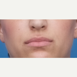 25-34 year old woman treated with Restylane Silk before 3764127