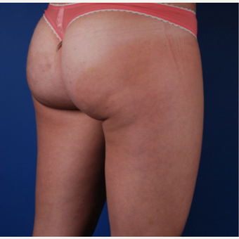 25-34 year old woman treated with Cellfina after 2879156