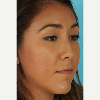 25-34 year old woman treated with Rhinoplasty before 3690852