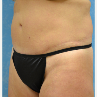 35-44 year old woman treated with Tummy Tuck after 3732045
