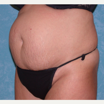35-44 year old woman treated with Tummy Tuck before 3732045