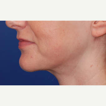 45-54 year old woman treated with Neck Lift after 3625252