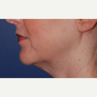 45-54 year old woman treated with Neck Lift before 3625252