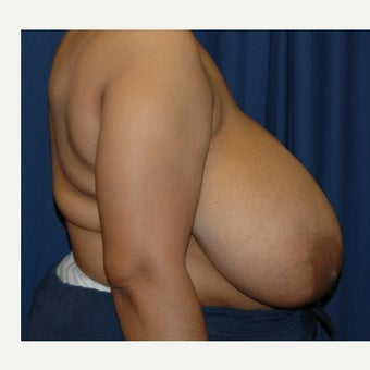 35-44 year old woman treated with Breast Reduction before 2217257