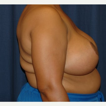 35-44 year old woman treated with Breast Reduction after 2217257