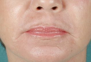 CO2 Laser Skin Resurfacing after 905896
