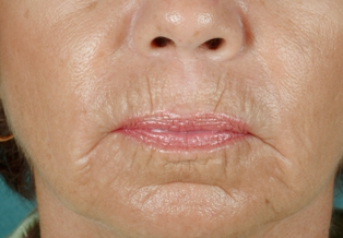 CO2 Laser Skin Resurfacing before 905896