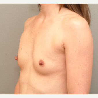 18-24 year old woman treated with Breast Implants before 3742975