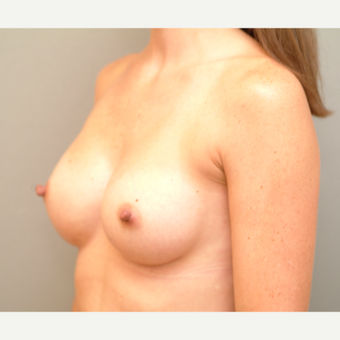 18-24 year old woman treated with Breast Implants after 3742975